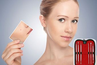 Should You Use a Blackhead and Comedone Acne Extractor?