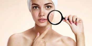 11 Best Acne Treatment 2019 Reviews That Actually Work