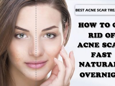 How To Get Rid Of Acne Scars : Expert Advice