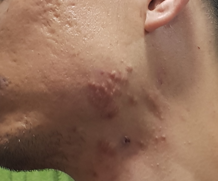 Hypertrophic scars acne 2