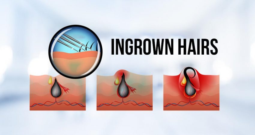 How To Get Rid Of Ingrown Hairs (Causes, Prevention, and Removal)