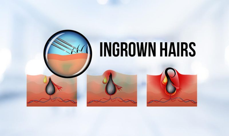 Ingrown-Hairs