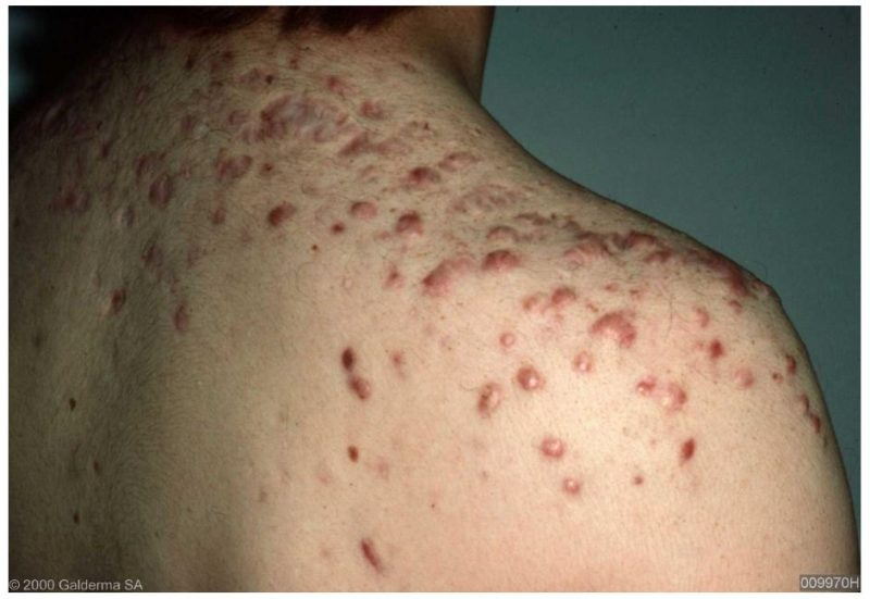 Keloid and Hypertrophic Scars