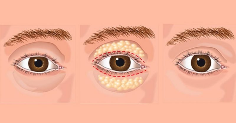 Natural-Ways-to-Get-Rid-of-Eye-Bags
