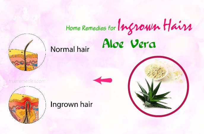 home-remedies-for-ingrown-hairs-aloe-vera