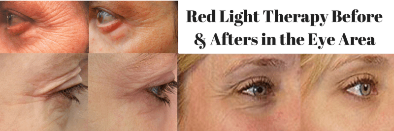 Red-Light-Therapy-Before-Afters-in-the-Eye-Area