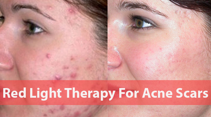Red-Light-Therapy-For-Acne-Scars