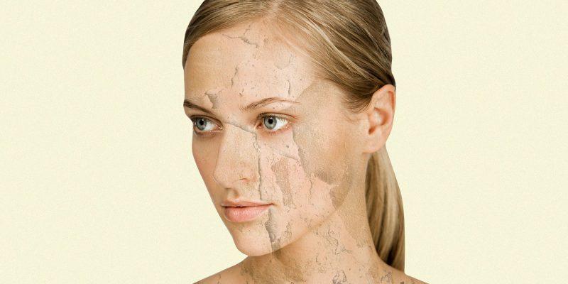 eczema-lotions