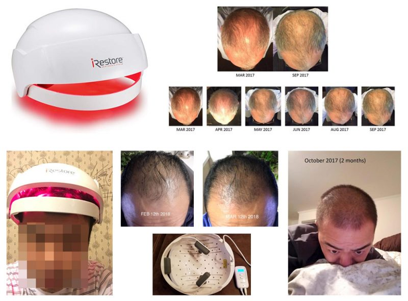 iRestore-Laser-Hair-Growth