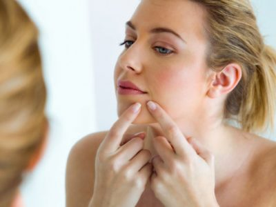 Best Acne Treatment for Teenage Girl That Work