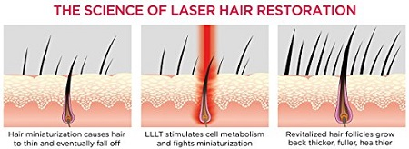 laser-hair-restoration