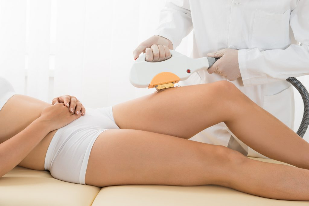 Full Body Laser Hair Removal