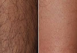 brazilian laser hair removal before and after 2 2