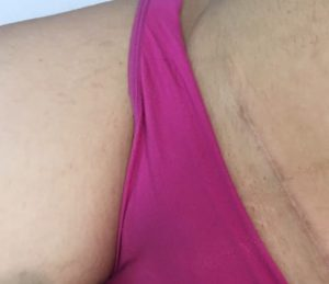 brazilian laser hair removal before and after 5 2