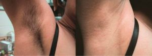 brazilian laser hair removal before and after 6 2