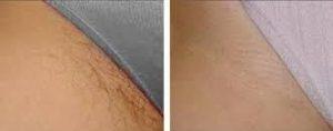 laser hair removal bikini 3 2